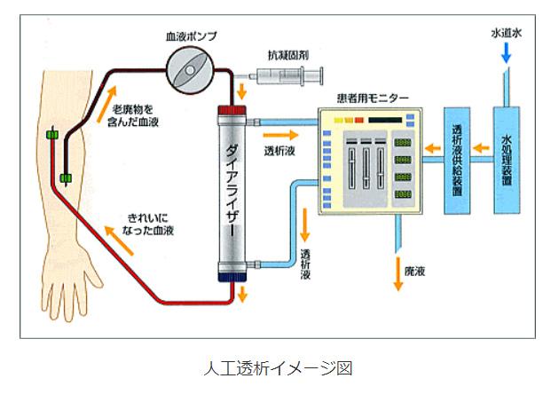 透析のイメージ図